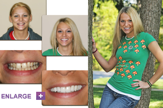Patient Smile Before and After Treatment