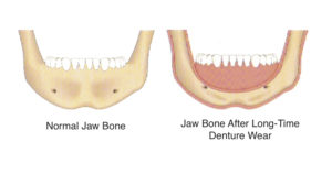 Missing Teeth? What Happens To The Jaw Bone Without Tooth Roots