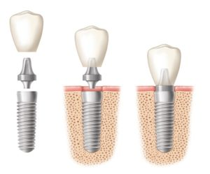 Implant and attachment