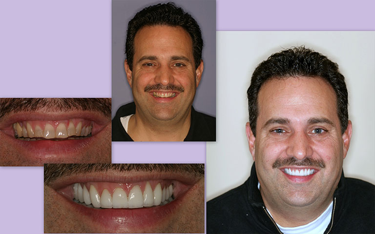 Patient Photo Before and After Treatment